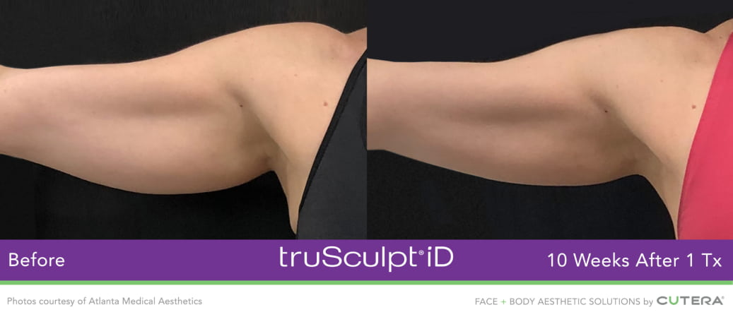arm fat reduction results