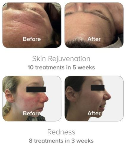 dermalux light therapy before and after 2