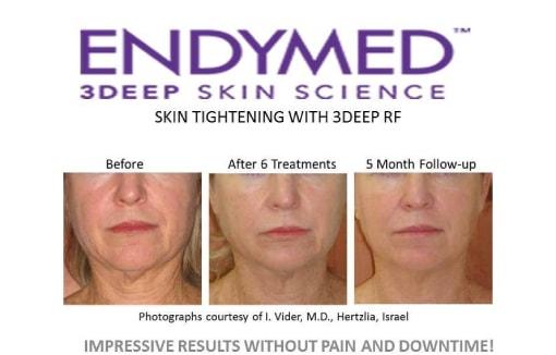 endymed 3deep intensif skin tightening