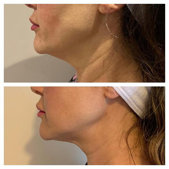 endymed 3deep intensif treatment before and after