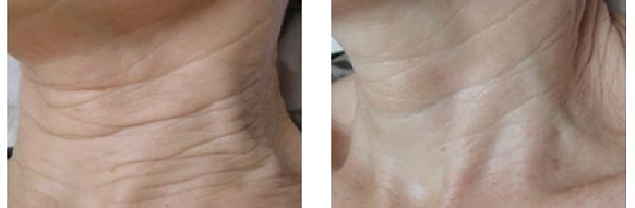 endymed skin resurfacing before and after treatment 2