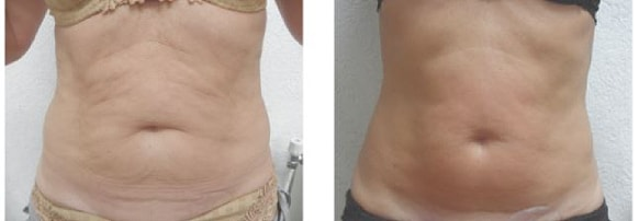 endymed skin resurfacing before and after treatment 3