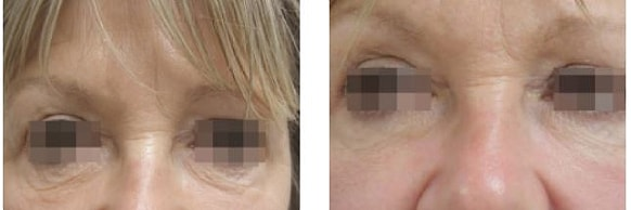 endymed skin resurfacing before and after treatment 4
