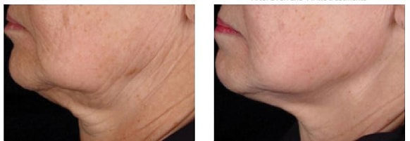 endymed skin resurfacing before and after treatment 5