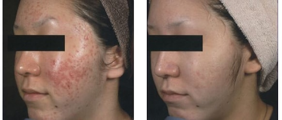 endymed skin resurfacing before and after treatment