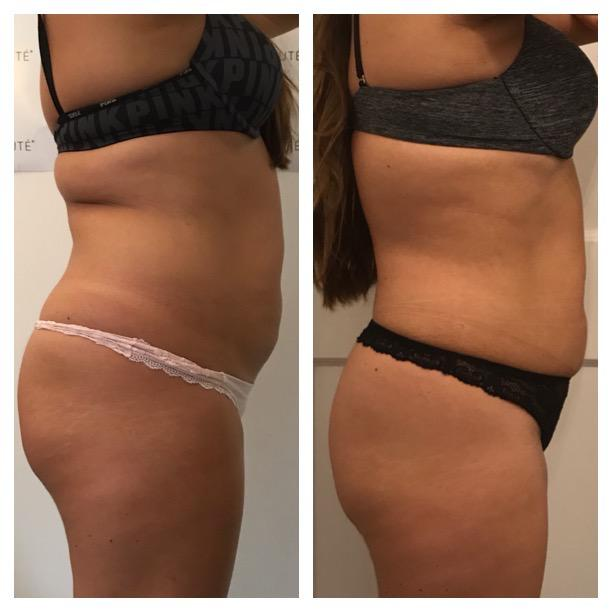 fat freezing results
