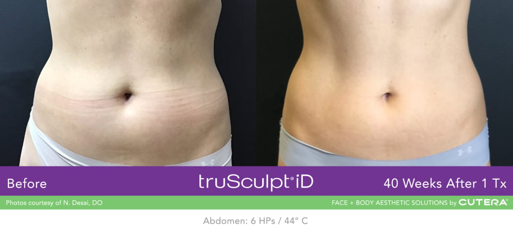 fat reduction results 2