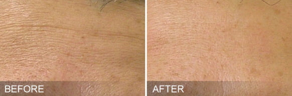 hydrafacial treatment - before and after