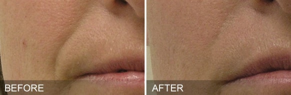 hydrafacial treatment - before and after 2