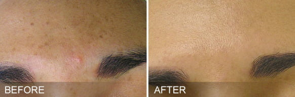 hydrafacial treatment - before and after 3