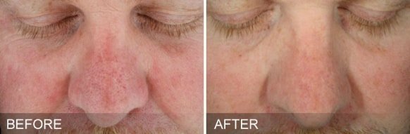 hydrafacial treatment - before and after 5
