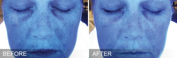 hydrafacial treatment - before and after 6
