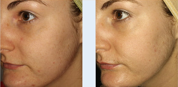 medical needling before and after 2