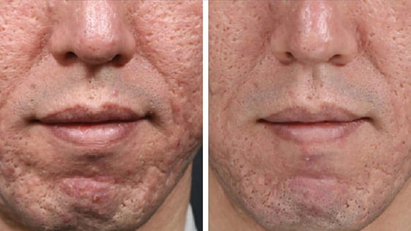 medical needling before and after 3