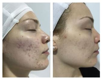 medical needling before and after
