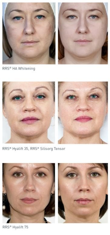 mesotherapy before- and after face treatment