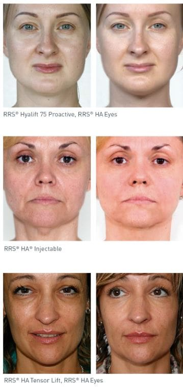 mesotherapy before and-after results