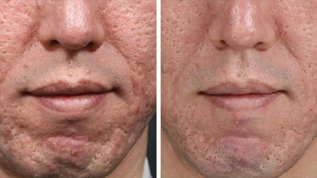 micro needling acne scars results