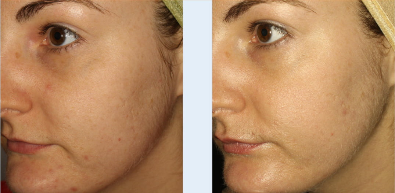 micro needling skin rejuvenation treatment results