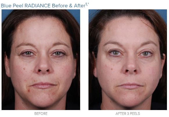 obagi blue peel radiance-before and after 3