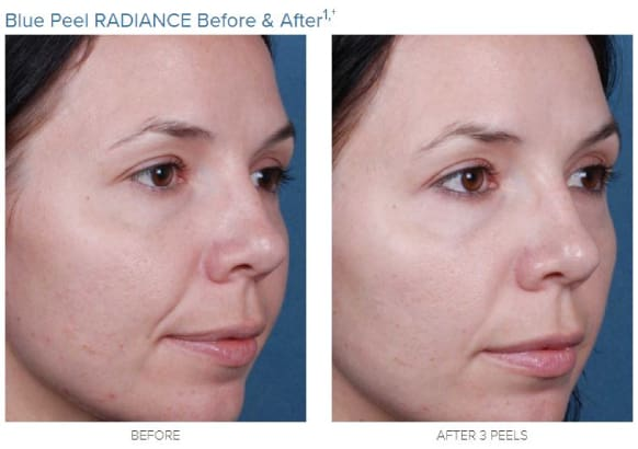 obagi blue peel radiance-before and after