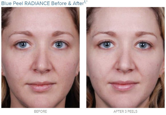 obagi blue peel radiance-before and after 2