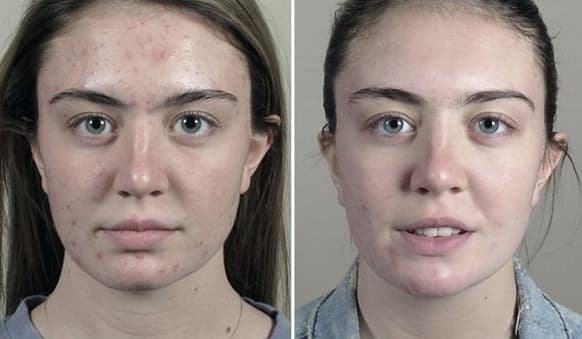 skinceuticals peels before and after