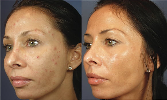 skinceuticals peels before and after 3