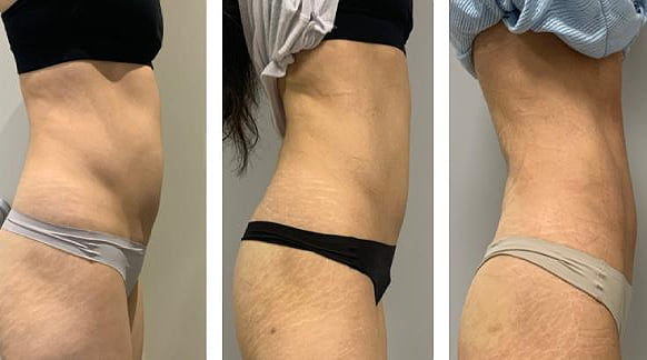 trusculpt flex treatment before and after 2