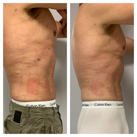 trusculpt flex treatment before and after 3
