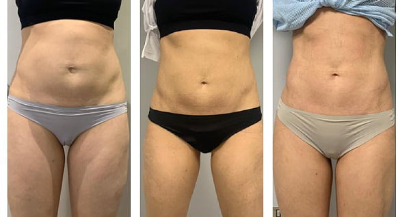trusculpt flex treatment before and after