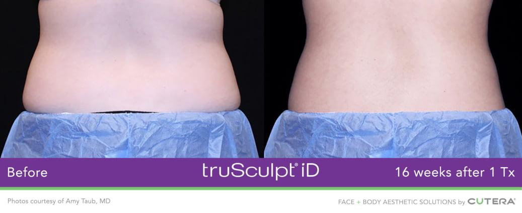trusculpt id results