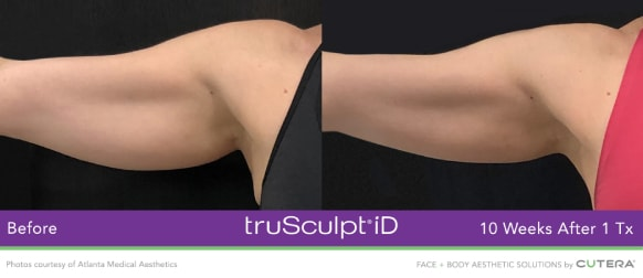 trusculpt id skin treatments before and after 10