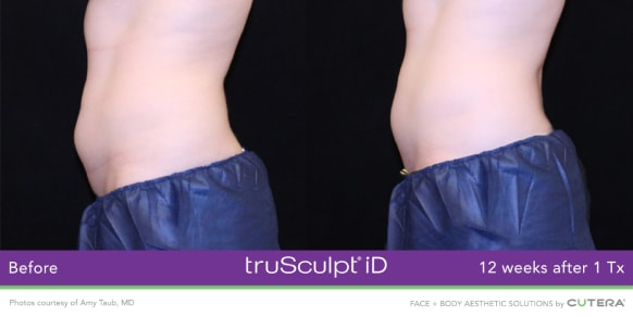trusculpt id skin treatments before and after 5