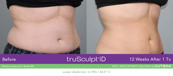 trusculpt id skin treatments before and after 7