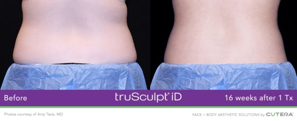 trusculpt id skin treatments before and after